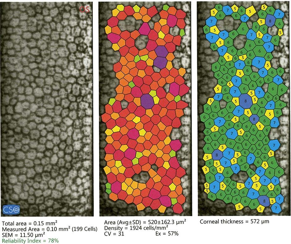 conta cellule corneale